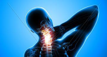 درمان وعلل درد گردن, گردن درد